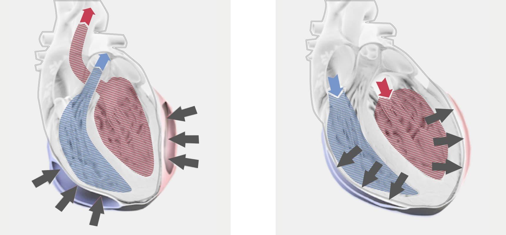 Mechanische Herzunterstützung